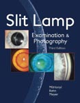 Slit Lamp: Examination and Photography